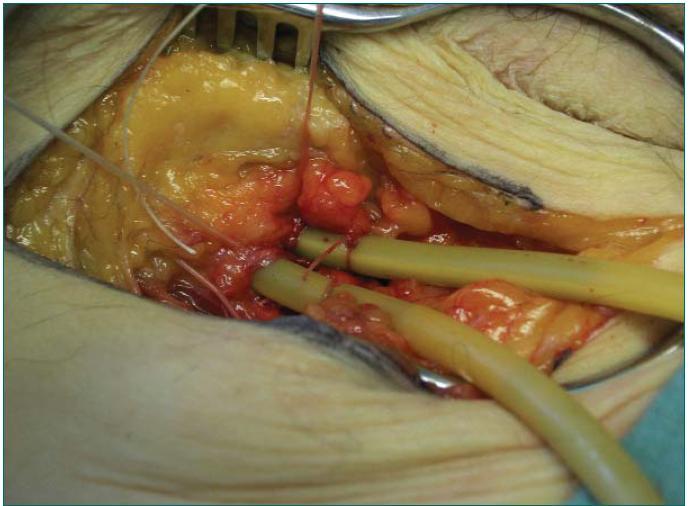 Obr. 2b. Kanylace femorální artérie a žíly v levém třísle u NHBD.