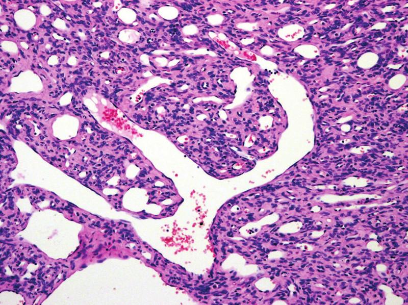 Solitární fibrózní tumor (SFT) s typickým parožnatým větvením cév. K extrapleurálnímu SFT byl v předchozí WHO klasifikaci řazen i hemangiopericytom. Tento termín byl z recentní klasifikace vypuštěn (původní zvětšení 100x).