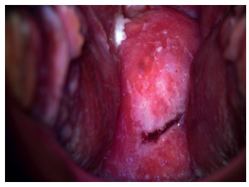 Digitální kolposkopie – nález na porci za 20 sekund po aplikaci 5% roztoku kyseliny octové (biopticky byla potvrzena HG léze)