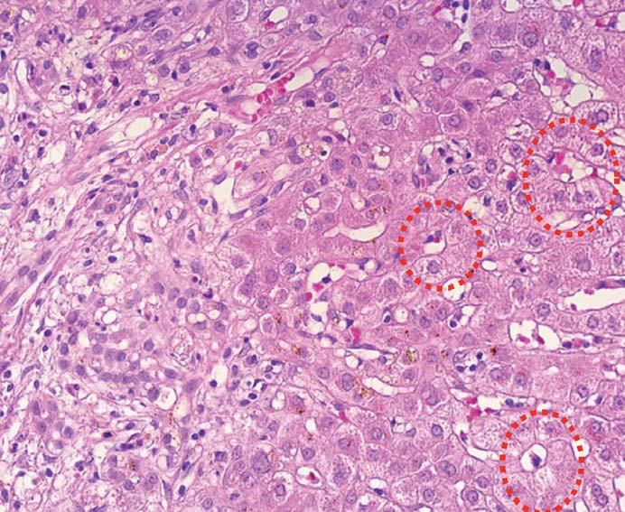 Typická morfologie poruchy žlučové drenáže s edémem portálního pole (vlevo) a fokální přestavbou do tzv. cholestatických rozet (červeně).