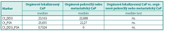 Hodnoty DD3<sup>PCA3</sup> a PSA mRNA exprese ve skupině pacientů s CaP ve vztahu k TNM klasifikaci (orgánově lokalizovaný vs. orgánově pokročilý nebo metastatický karcinom) Table 5. The values of DD3<sup>PCA3</sup> and PSA mRNA expression in group PCa according to TNM classification (organ confined vs. local advanced and metastatic PCa