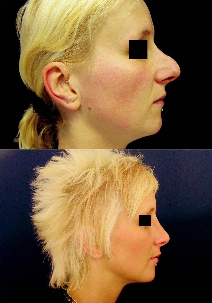 Redukce tkání u profiloplastik. a) snížení septa o 10 mm; b) jemné snesení hřbetu; c) kořen ponechán intaktní; d) odstranění mohutných konvolutů a chrupavek hrotu; e) zkrácení dolní poloviny septa o 4 mm s exstirpací spina nasalis ant.