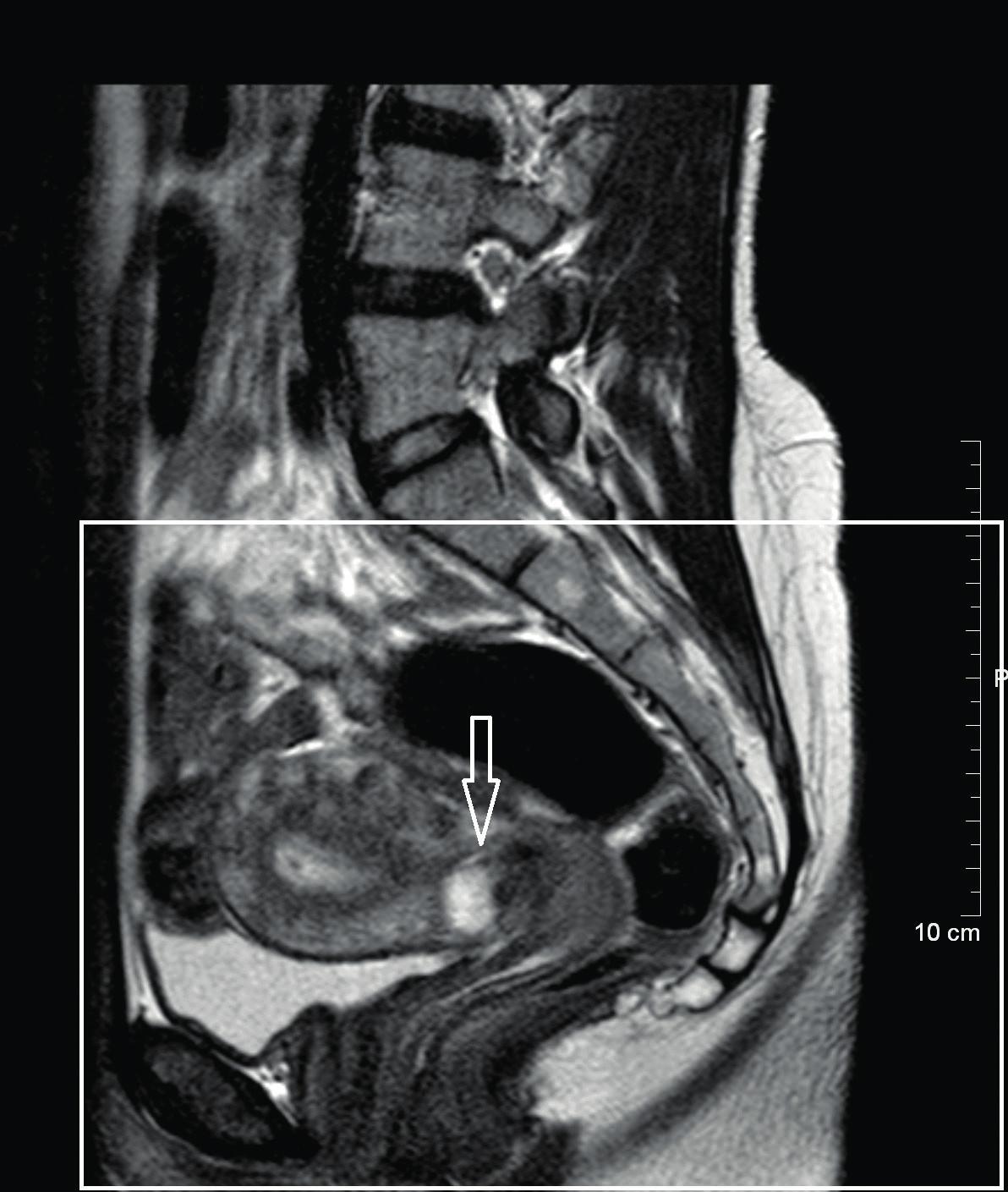 MRI malé pánve – sagitální řez