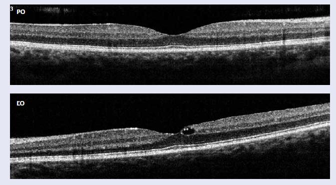 Optická koherentná tomografická angiografia: pravé oko (PO) – makula má normálnu stratifikáciu s fyziologickou foveálnou depresiou, ľavé oko (ĽO) makula s mierne oploštenou foveálnou depresiou a počínajúcim fokálnym diabetickým edémom makuly