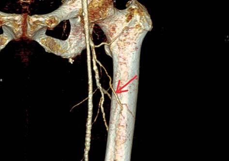 CT zobrazení RDACFL (označena šipkou) Fig. 2: CT scan of DBLCFA (arrow)
