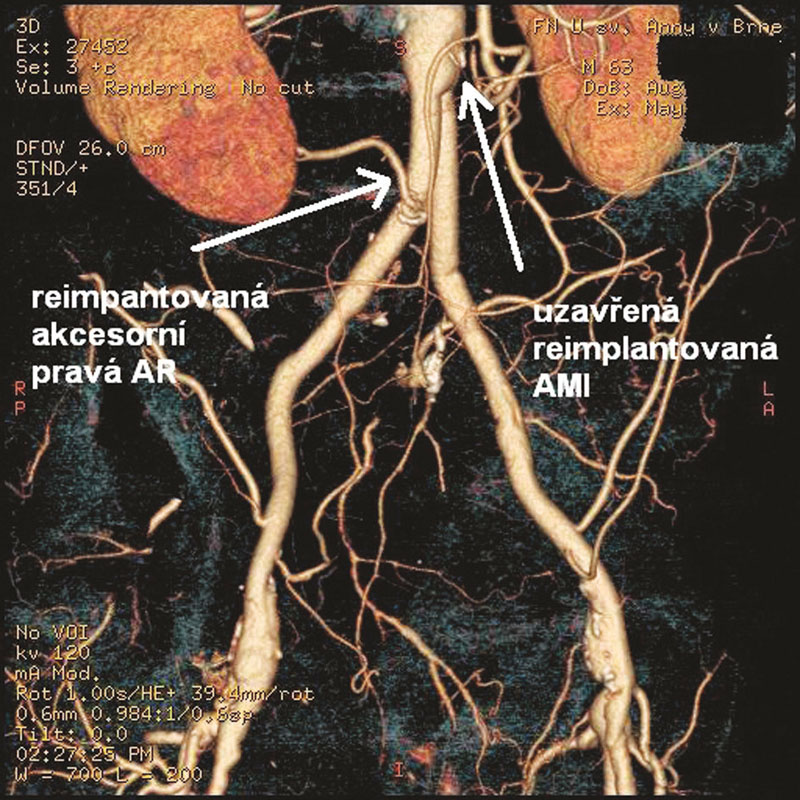 Pooperační rekonstrukce CTA s nálezem průchodné reimplantované akcesorní AR a uzavřené AMI Fig. 3: Postoperative CTA with patent reimplanted accessory right renal artery (AR) and occluded reimplanted inferior mesenteric artery (AMI)