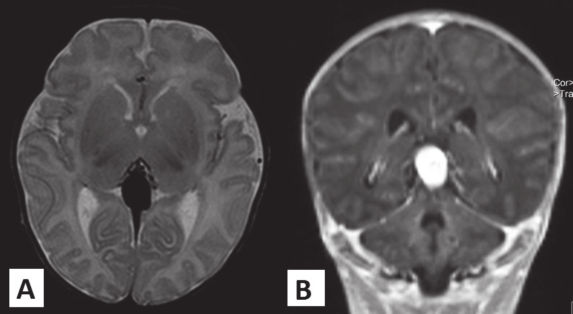 Obr. 2. MR vyšetrenie mozgu novorodenca s malformáciou vena Galeni, kazuistika 1.