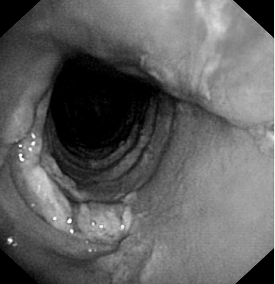 Tracheomalacie v místě chirurgické tracheostomie u kardiochirurgického pacienta – pooperační průběh komplikován dehiscencí sterna a mediastinitidou