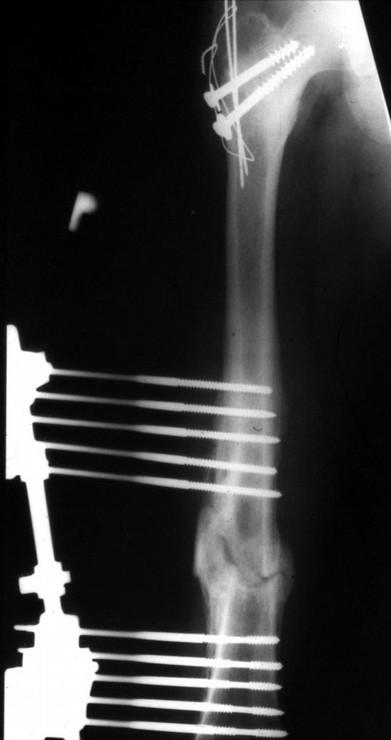 Obr. 1.a 13letý hoch, ISS = 34: zlomenina III. typu dle Delbeta a Colonny, basicervikální, kominutivní zlomenina pánve, kontuze jater, crush syndrom Obr. 1.b 13letý hoch, ISS = 34: tříštivá otevřená zlomenina stejnostranného femuru Obr. 1.c 13letý hoch, ISS = 34: osteosyntéza krčku femuru dvěma spongiózními šrouby a fixace velkého trochanteru tahovou cerkláží Obr. 1.d 13letý hoch, ISS = 34: zevní fixace otevřené diafyzární stejnostranné zlomeniny femuru