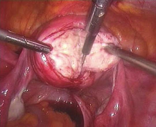 a. Laparoskopická myomectomie.