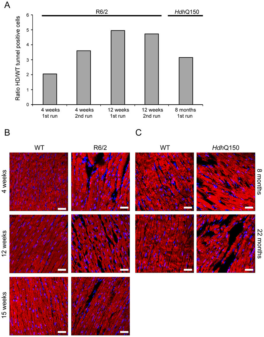 Ongoing cardiomyocyte death occurs through apoptosis in the hearts of HD mouse models.