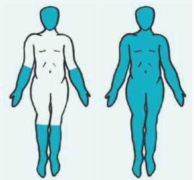 Rozlišení kožně limitované formy systémové sklerodermie (vlevo) od kožně difuzní formy (vpravo) podle rozsahu postižení kůže. Postižené části kůže jsou vyobrazeny barevně