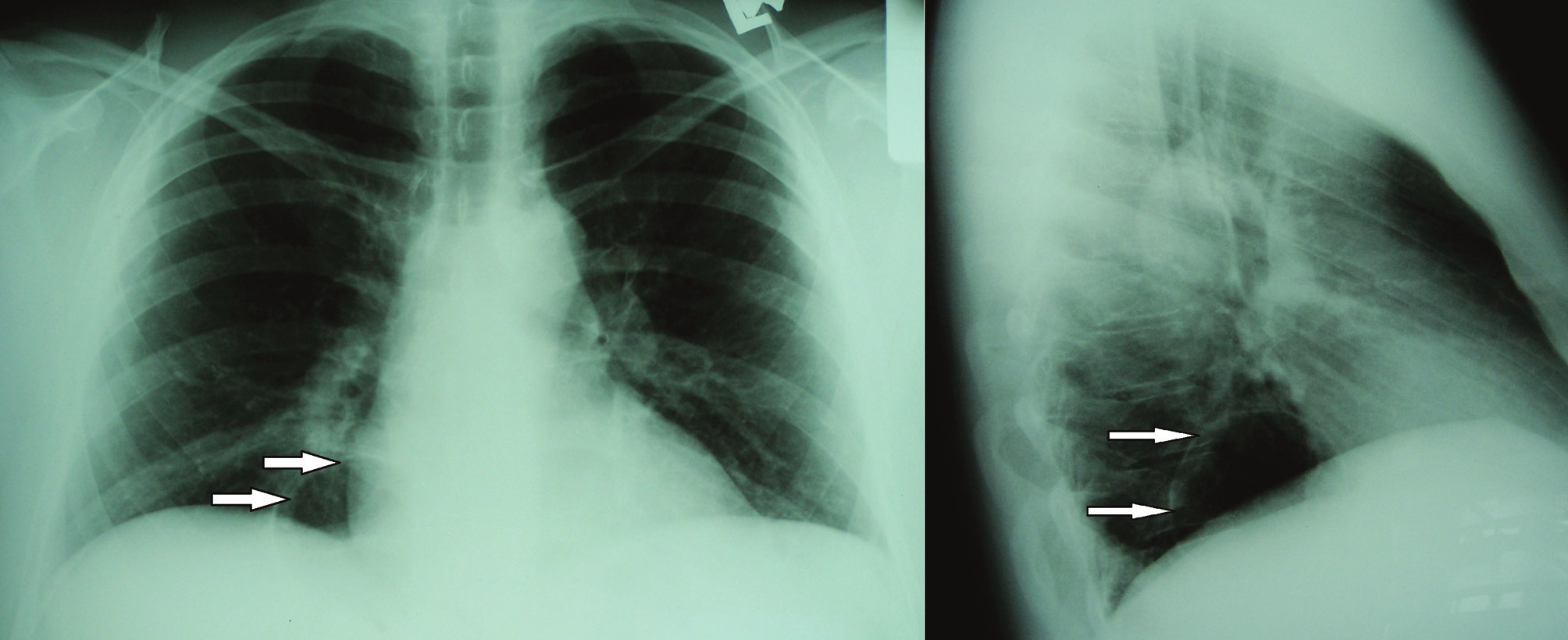 RTG hrudníka s prítomnou tenkostennou transparenciou okrúhleho tvaru v pravom kostofrenickom uhle