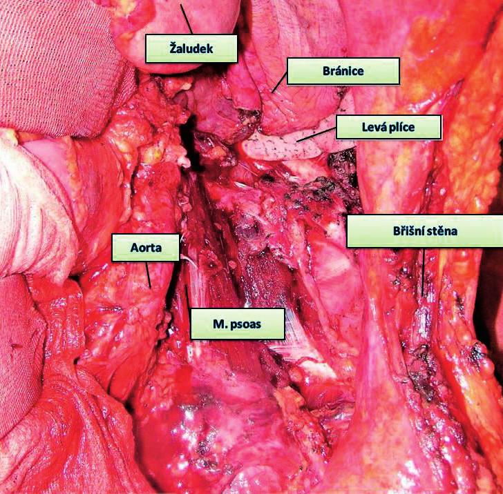 Stav po resekci výše zobrazeného karcinomu – multiorgánová resekce