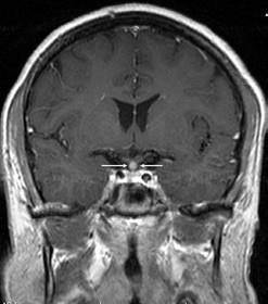 Kulovité zbytnění, infiltrace stopky hypofýzy při Langerhansově histiocytóze, se sycením kontrastní látkou. Řez v koronární rovině, T1 vážený MR obraz po aplikaci kontrastní látky.