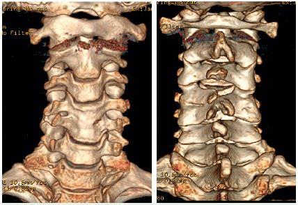 3D CT vyšetrenie C chrbtice - kongenitálna synostóza C4 a C5, koronárna rovina A - z predu, B - zo zadu.