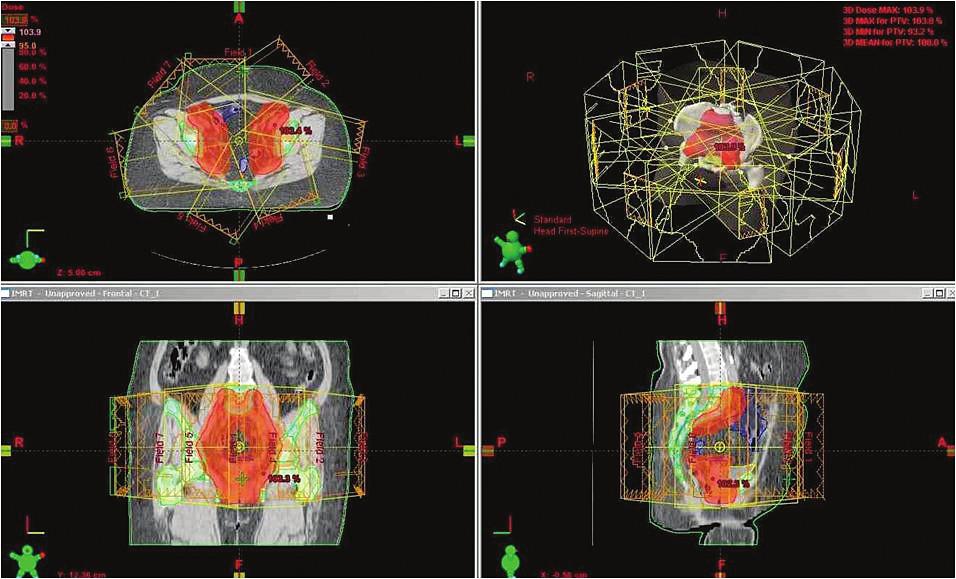 Radioterapie pánve technikou IMRT
