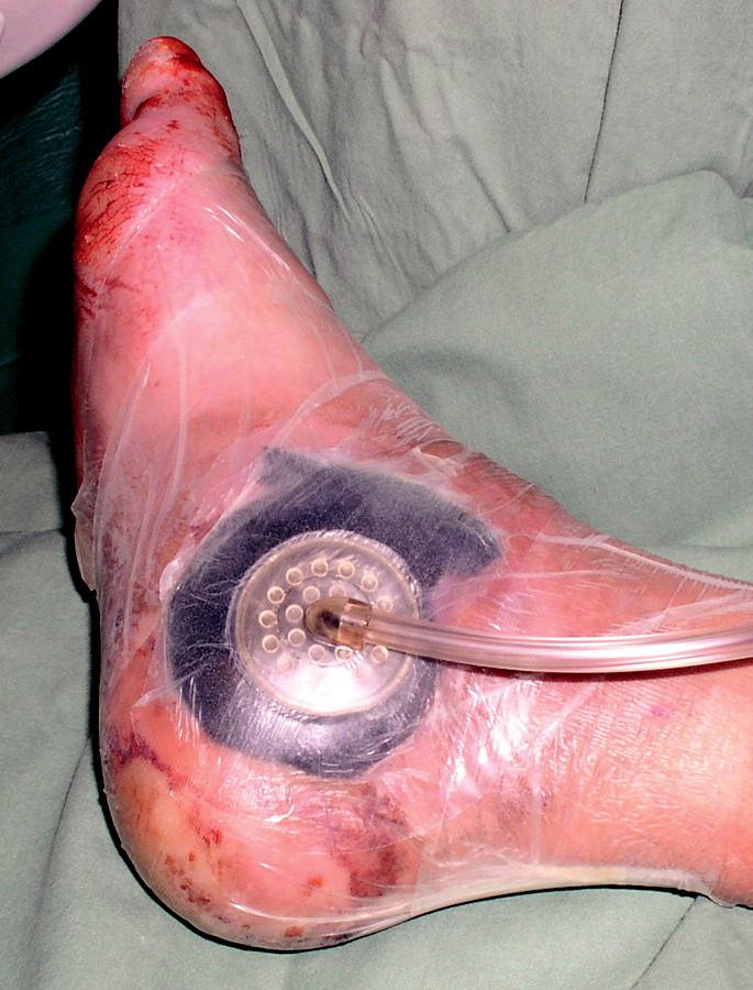 Překrytí pěny okluzivní folií s odsavným drénem.