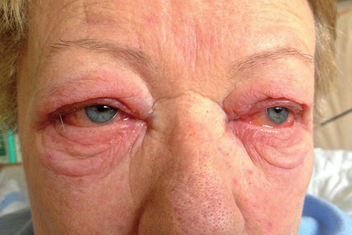 Oční postižení při léčbě ipilimumabem.