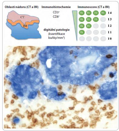 Definice a metodologie immunoscore (horní část); imunohistochemické barvení CD3<sup>+</sup>  a CD8<sup>+</sup> buněk ve tkáni kolorektálního karcinomu (dolní část) [1].