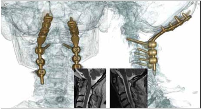 3D CT rekonstrukce provedené okcipitocervikální stabilizace (C0–C4) u revmatika – pooperační kontrola. Ve výřezech zobrazena nepřímá dekomprese prodloužené míchy změnou postavení v oblasti kraniocervikálního přechodu stejného nemocného v T2 váženém MR zobrazení – snímek před výkonem a pooperační kontrola.