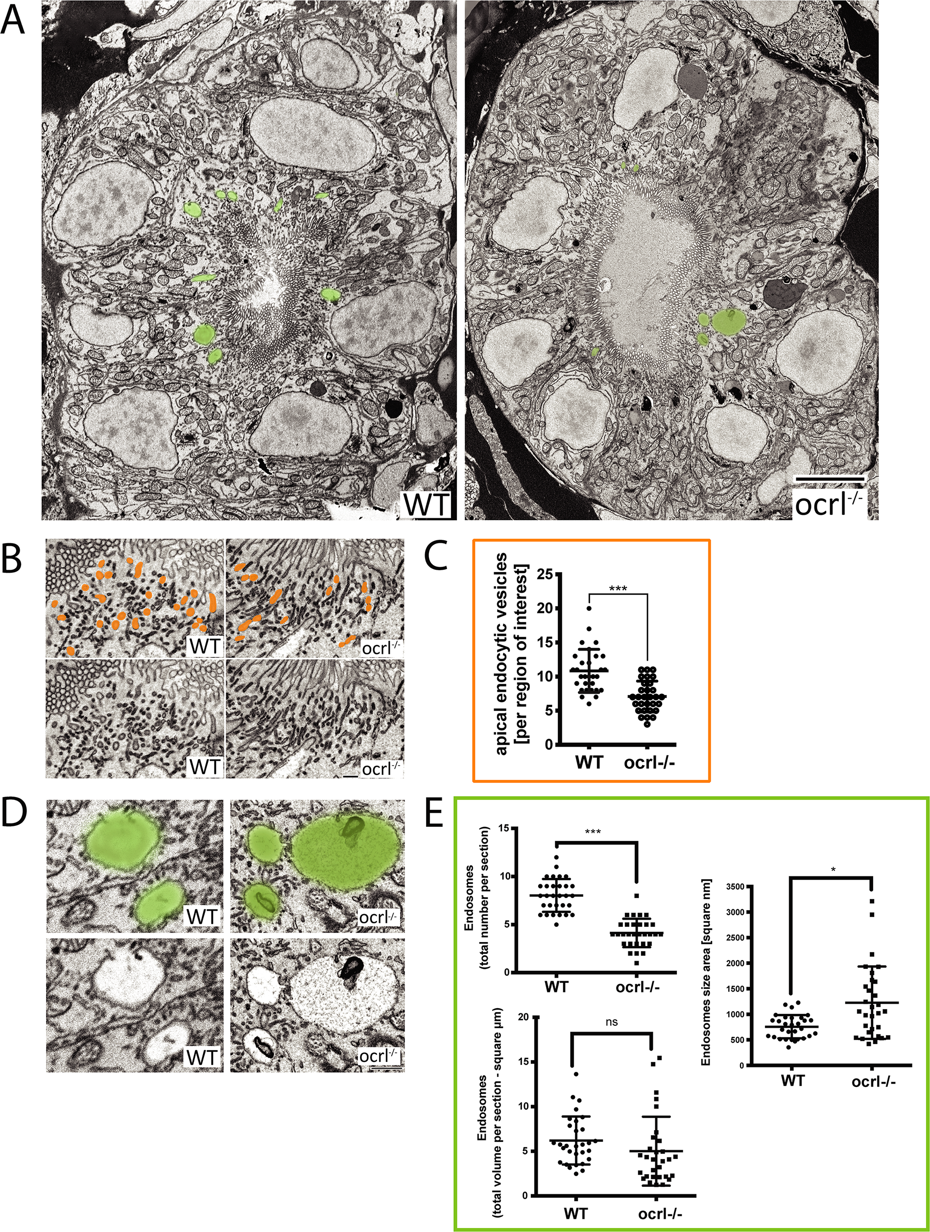 Electron microscopy analysis of endocytic compartments in OCRL1 deficient pronephros.