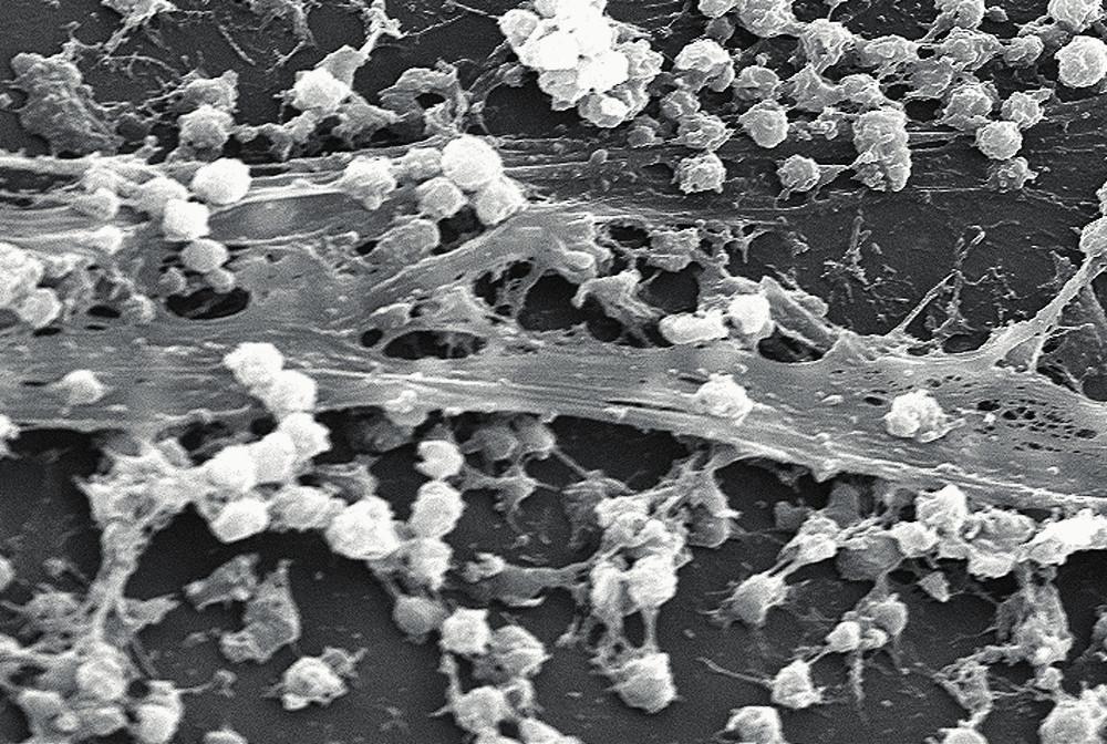 <em>Staphylococcus aureus</em> a biofilm na povrchu centrálního žilního katetru (převzato z Wikipedie). Fig. 1. <em>Staphylococcus aureus</em> and the biofilm on the surface of central venous catheter.