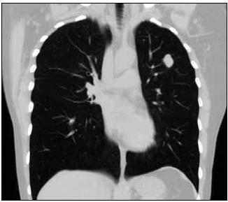"""Vstupní vyšetření, CT obraz plic, stejné ložisko v """"plicním okně"""" v koronárním řezu."""