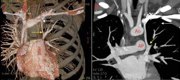 Výpočetní tomografie (CT) hrudníku