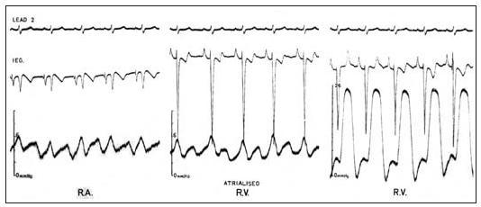 """Záznamy u Ebsteinovy anomálie během srdeční katetrizace s elektrodou na katétru. V """"atrializované"""" části pravé komory se zaznamená současně se síňovým tlakovým pulzem komorový intrakardiální elektrokardiogram (prostřední obrázek)."""
