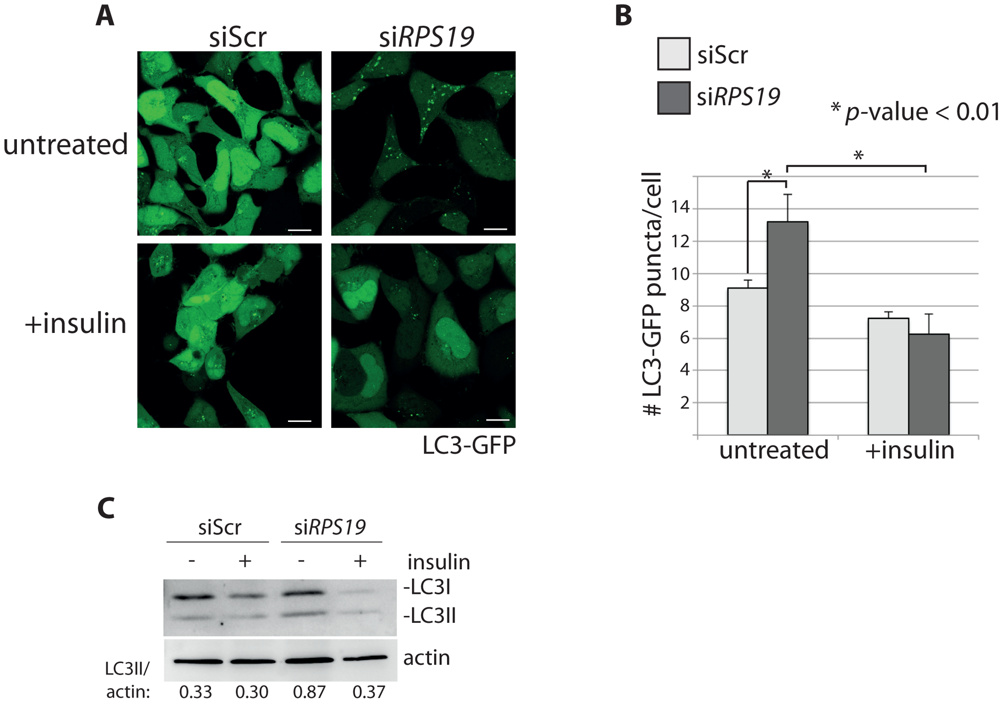 Insulin abolishes autophagy in cells with RPS19 loss.