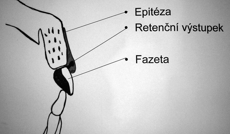 Schéma retenčního mechanismu epitézy.