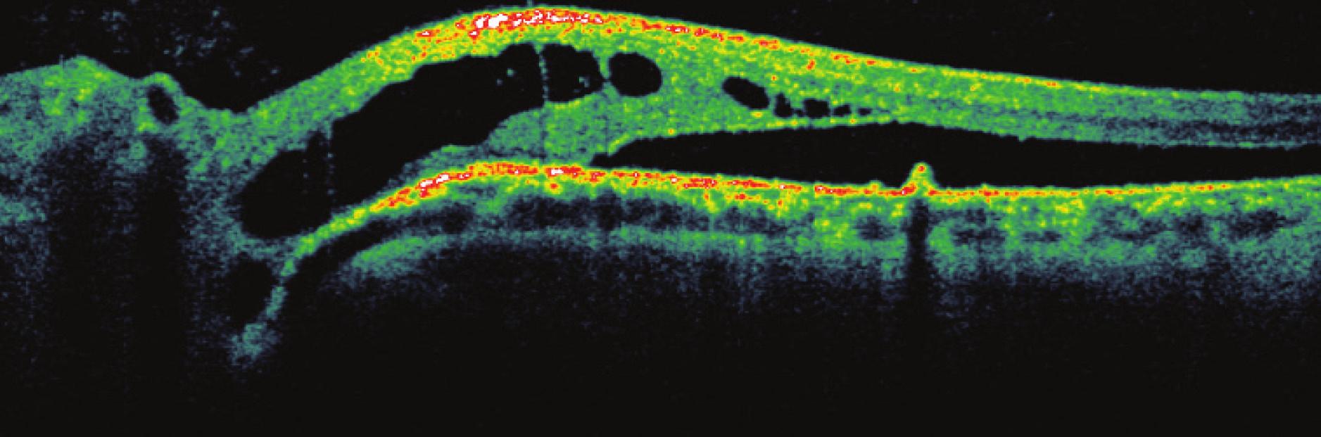 Obr. 7a Pacient č. 5 Lineární horizontální transpapilární (v horním okraji terče zrakového nervu) OCT sken OL, makulármí retinoschíza zevní vrstvy sítnice a subretinální tekutina