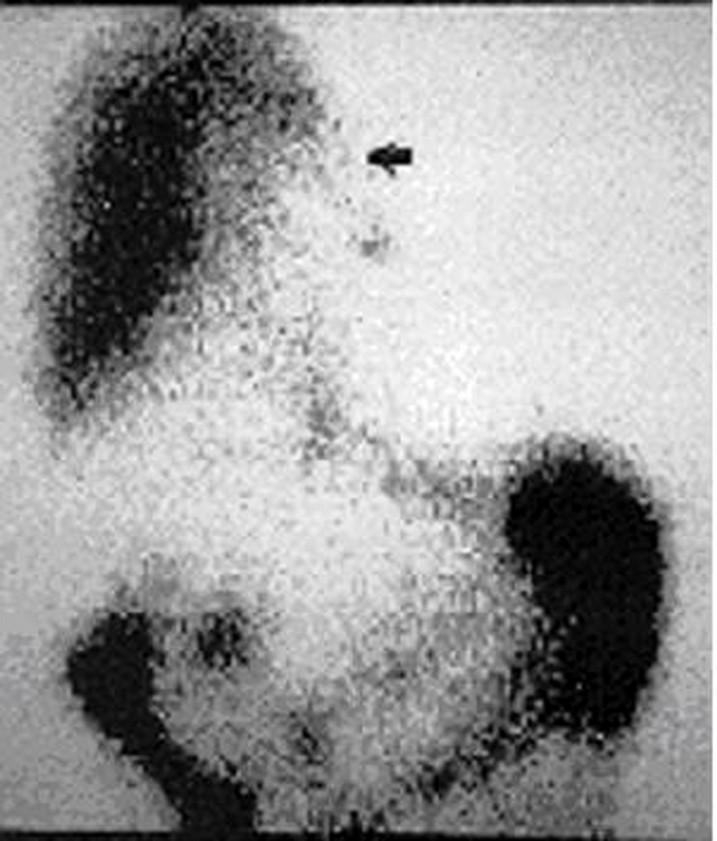 Techneciový sken - 4 hodiny po podání značeného koloidu intraperitoneálně. Šipka ukazuje akumulaci v pravém hemitoraxu