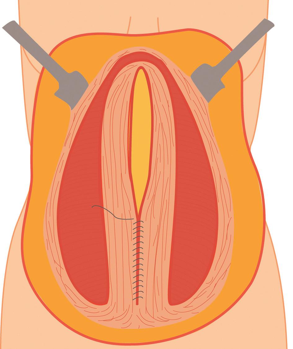Sutura defektu břišní stěny (kýlní branky) pokračujícím stehem Fig. 3: Suture of the abdominal wall using continuous suture