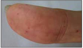 Prst pacientky s typickými kožními teleangiektaziemi.