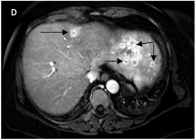 A – na axiálních CT skenech je patrná metastáza karcinomu štítné žlázy v levém jaterním laloku před IRE (šipka); B – uložení dvojice elektrod; C – rozsah nekrózy po IRE; D – výrazný enhacement v oblasti původního nádorového ložiska svědčí pro časnou postablační recidivu, další nová meta ložiska v obou jaterních lalocích (šipky)