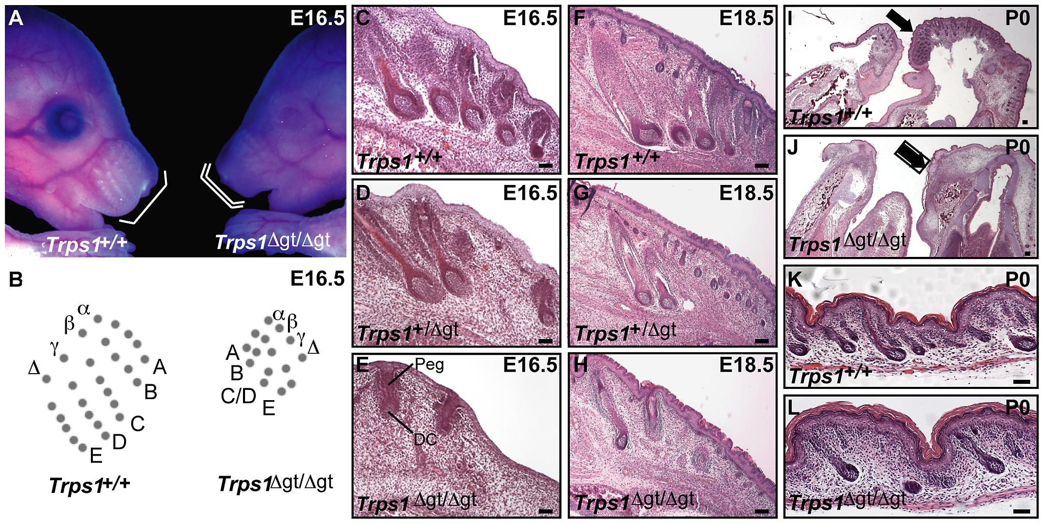 Late morphogenesis vibrissa follicle abnormalities in <i>Trps1<sup>Δgt/Δgt</sup></i> embryos.