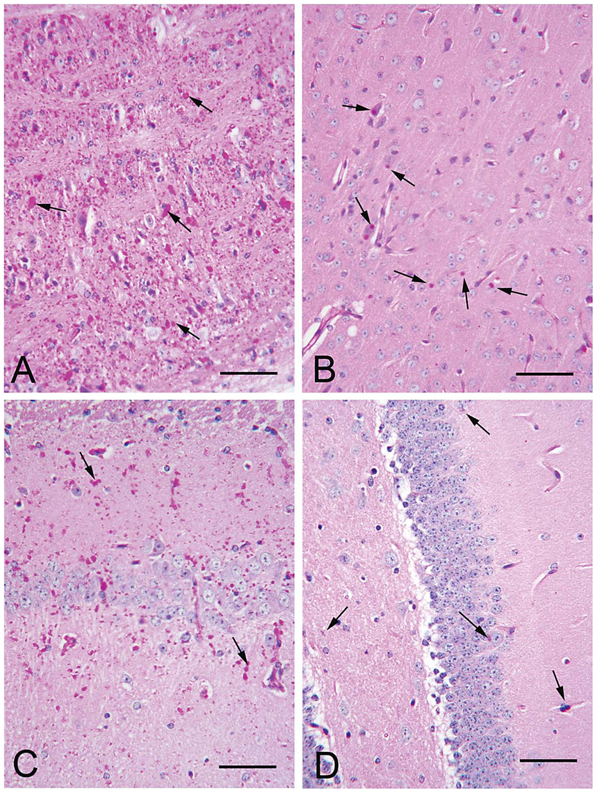 LB in brain of 12 month-old LKO and DKO mice.