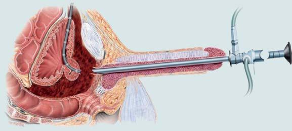 Poranění zadní části močové trubice. Obnovení kontinuity močové trubice pomocí endoskopického přístupu.