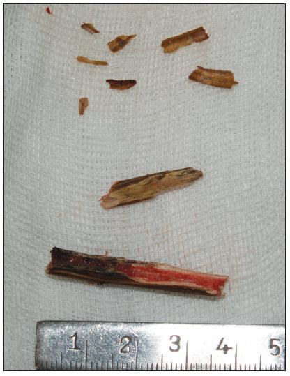 Kazuistika 1: mnohočetná cizí tělesa dřevitého charakteru extrahovaná z očnice.