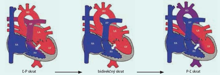 Vývoj skratu cez defekt pri pľúcnej artériovej hypertenzii