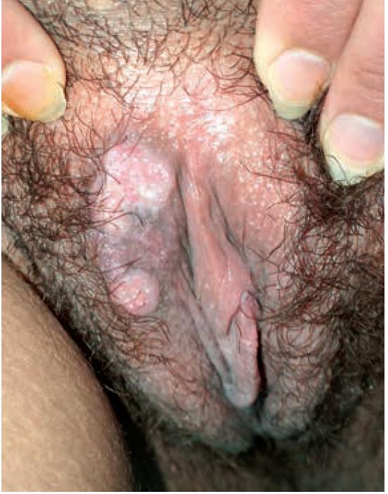 Condylomata lata – sekundarni syfilis