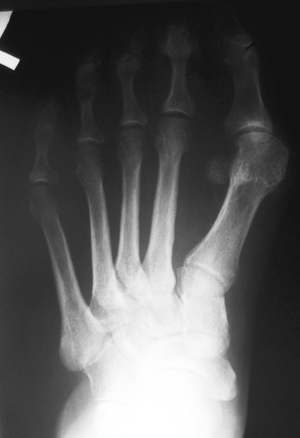 7. a Předoperační rtg snímek, varozita I. MTT
