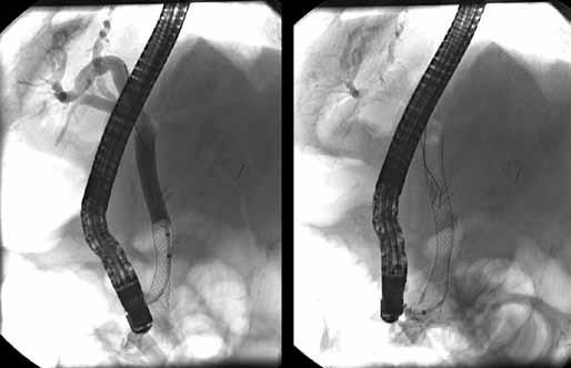 Pri kontrolnom ERCP, jeden deň po zavedení biliárneho metalického stentu, nie je prítomný únik žlče.  Fig. 6. Not visible bile leak one day after insertion of biliary fully covered self-expandable metallic stent.