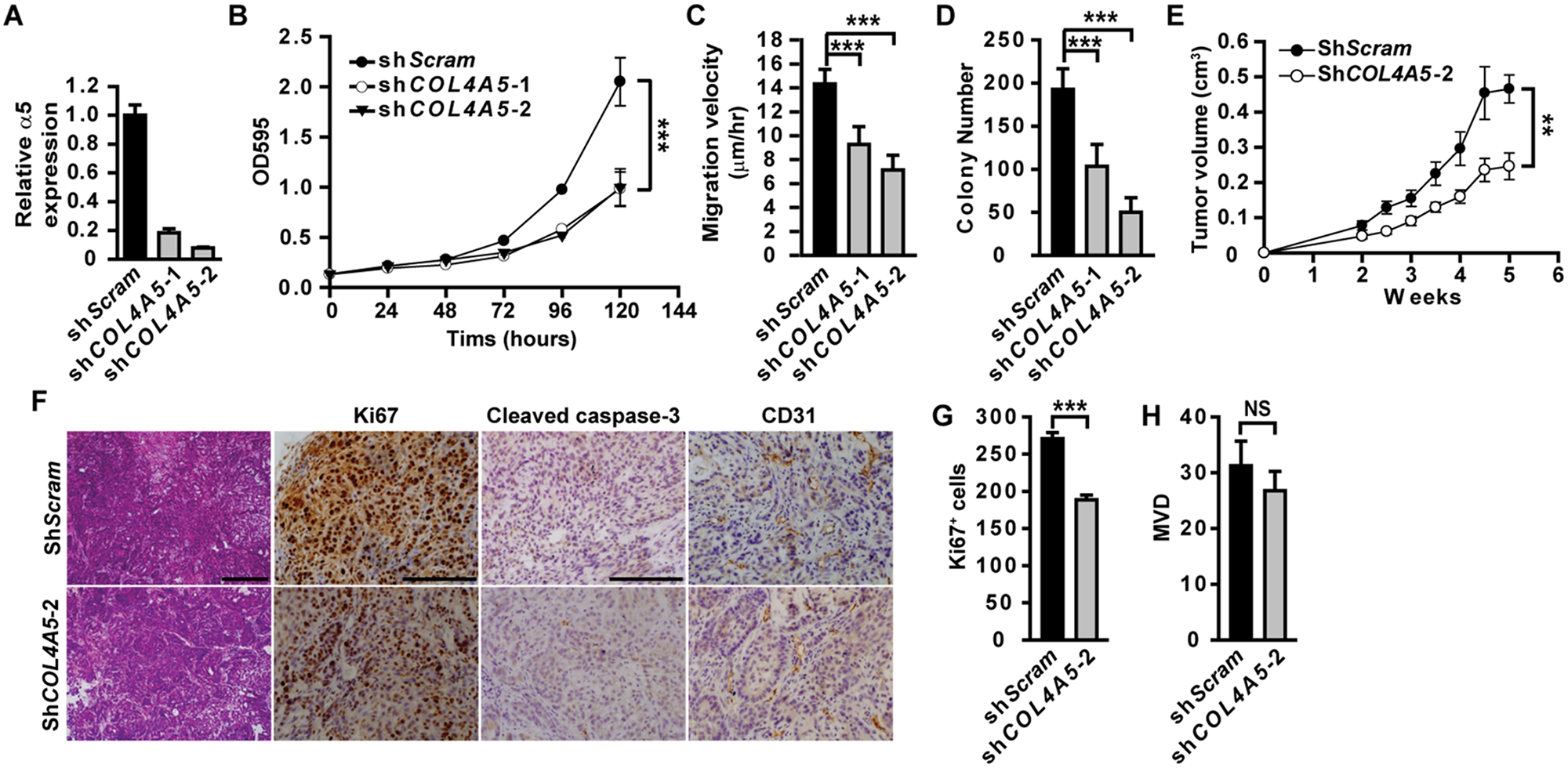 Epithelial α5(IV) supports tumor cell growth and tumorigenicity.