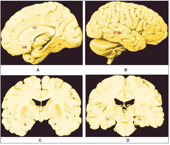 A – D. Přibližná poloha oblastí mozku, jejichž strukturální a funkční odchylky korelují psychopatii Legenda: A – Vnitřní plocha pravé hemisféry; B – Zevní plocha pravé hemisféry; C – Řez v čelní rovině na úrovni amygdaly; D – Řez v čelní rovina na úrovni s. nigra; CC – corpus callosum; VM – ventromediální prefrontální kůra; A – amygdala; STS – kůra sulcus temporalis superior; H – hipokampus;