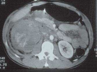 Poranění ledviny V. grade (stupně).