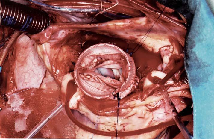 Chirurgické řešení Marfanova syndromu se zachováním vlastní aortální chlopně, která je implantována do cévní protézy