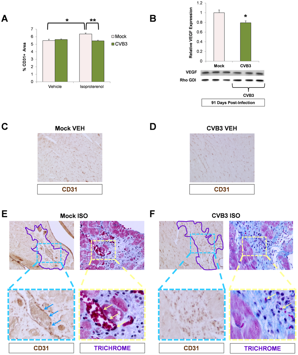 Impaired vascular remodeling following beta-adrenergic stimulation-induced cardiac hypertrophy in adult mice infected with CVB3 at an early age.
